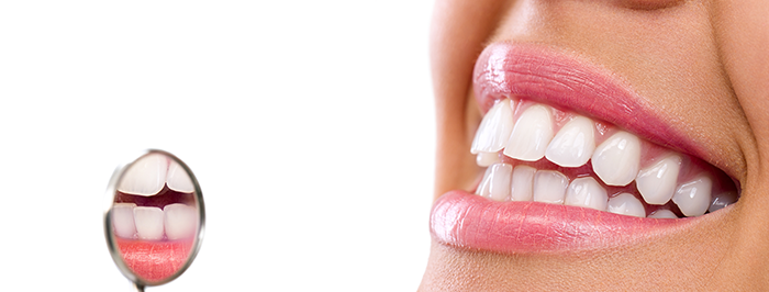 Choosing the right strips to whiten your teeth